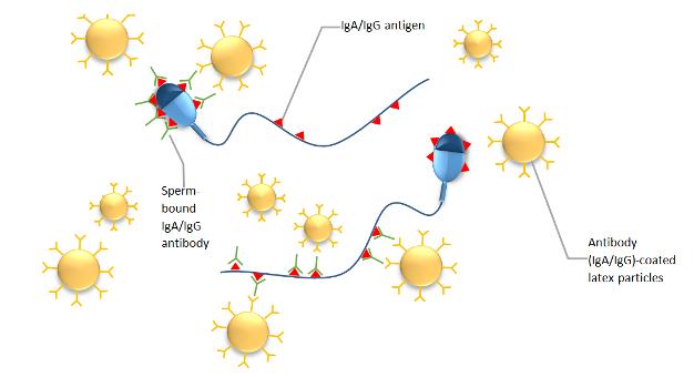 sperm antibodies