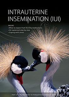 Intrauterine Insemination IUI Free book
