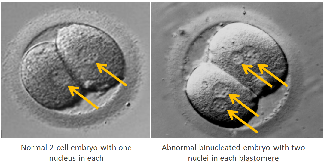 normal 2-cell embryo and abnormal binucleated embryo