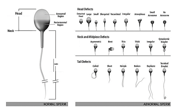 normal sperm vs. abnormal sperm